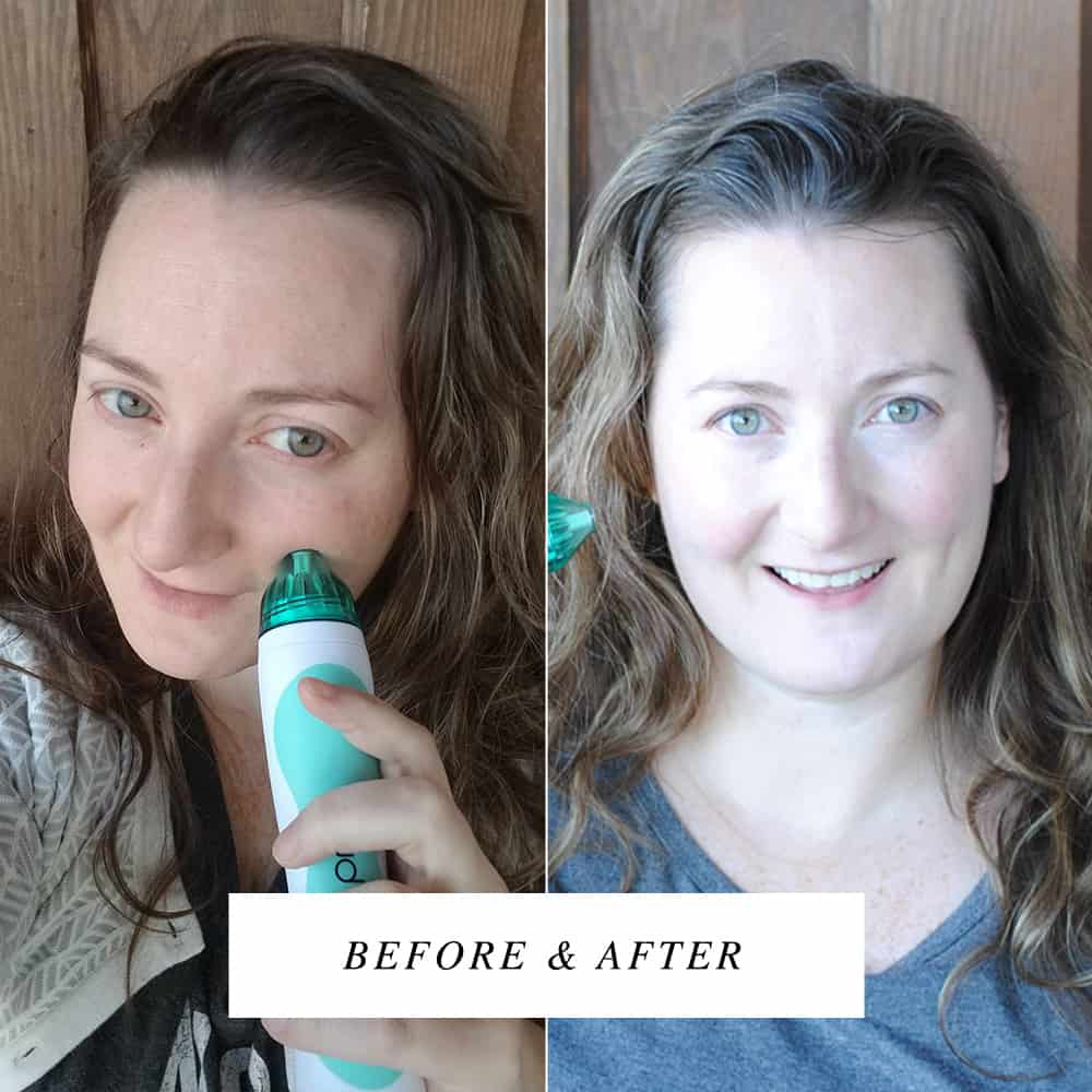 AD I Turned 40 And My Skin Is Fantastic! Use the code PRIMP20 to save 20% off your order (subscriptions and sales not included)! #pmdbeauty #brilliantconfidence #primpxpmd #skincare